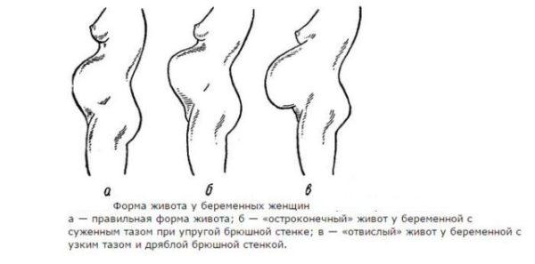 разные формы живота у беременных