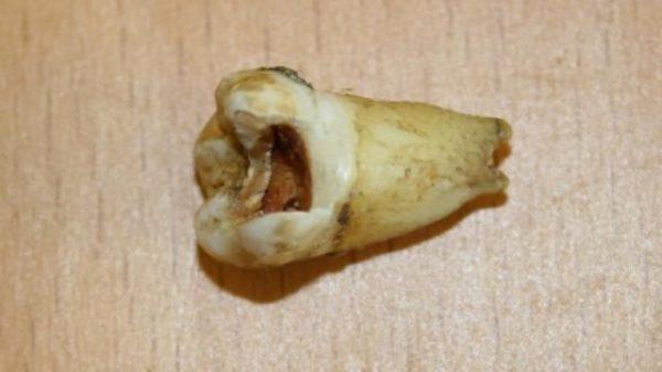 Гнившая кость