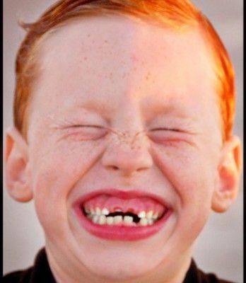 Сонник выпал зуб без крови передний верхний
