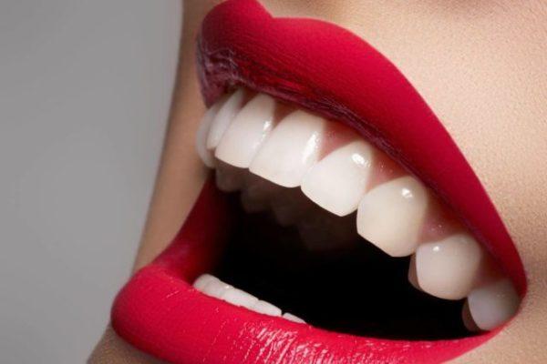 белоснежные зубы