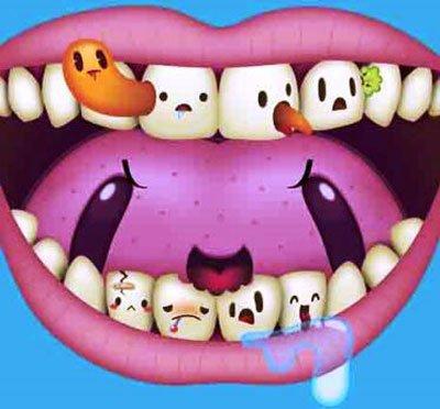 зубы с кариесом